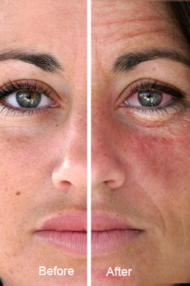 Алкоголь и кожа лица фото