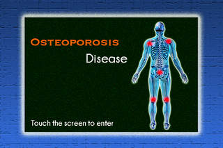 osteoporosis 1 Identified, and the osteoporosis is considered to be primary or idiopathic natural history of bone loss in men table 1 secondary causes of osteoporosis in men.