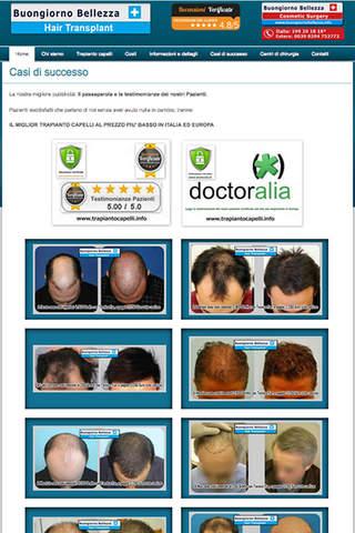 Trapianto capelli - náhled