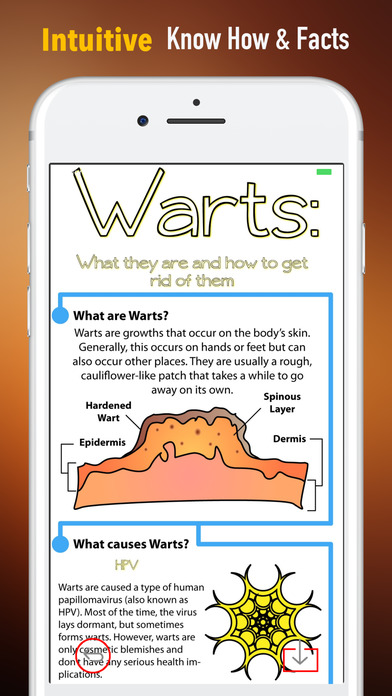 Warts 101-Ultimate Guide to Getting Rid of Warts screenshot 1