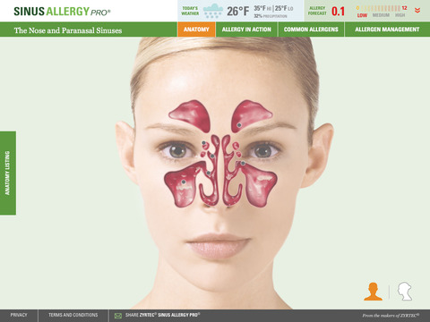 Sinus Allergy Pro™ - náhled