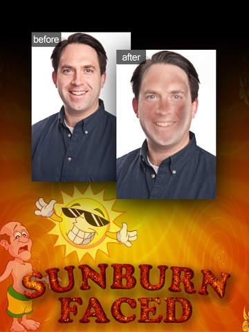 SunburnFaced - The Fake Sun Burn Photo FX Booth screenshot 5